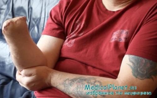 Контрактура голеностопных суставов реабилитация аналоги терафлекса для суставов подешевле