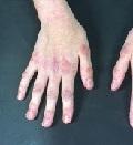 лечение посттравматической дистрофии руки