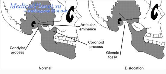 Лечение вывихов нижнечелюстного сустава у детей.  История болезни привычного вывиха нижней челюсти.