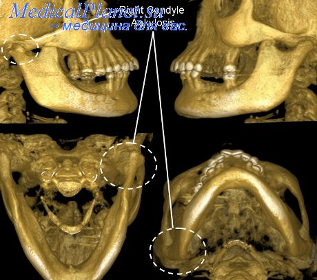 Анкилозом височно нижнечелюстного сустава боль в локтевом суставе и предплечье