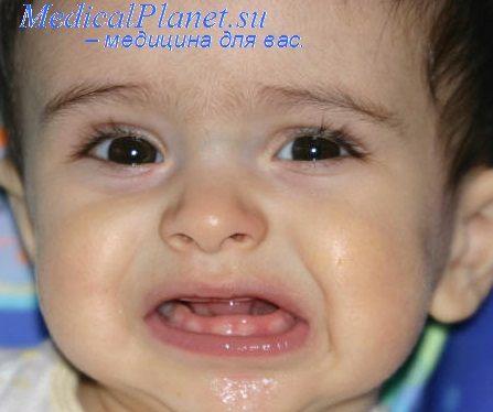 ...что началом прорезывания первых моляров, центральных и нижних боковых резцов у девочек является возраст 5 лет.