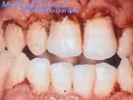 У ребенка кариес молочных зубов 6 лет как лечить