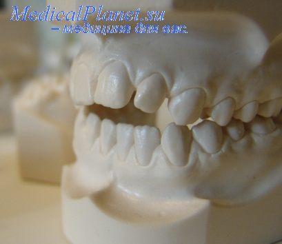 Апроксимальные контакты зубов