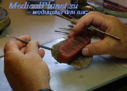 починка протеза зуба