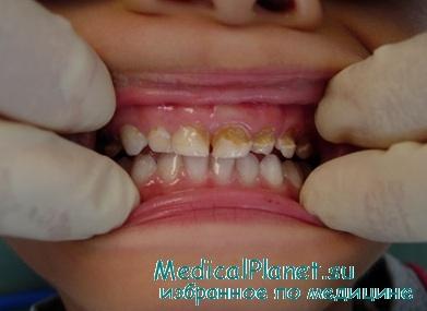 Гингивит у ребенка из-за запущенного состояния гигены зубов