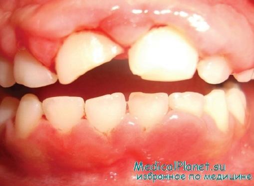 Повреждения структур пародонта. Подвывих и вывих зуба