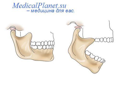 вывих височно-челюстного сустава