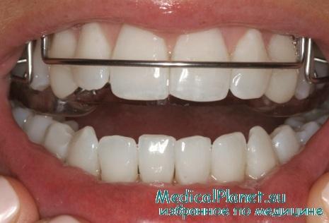 при высокой стираемости зубов джиг накусочная площадка