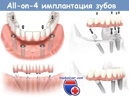 Схема All-on-4 имплантации зубов