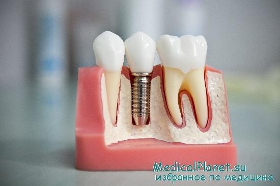 Восстановление зуба имплантацией