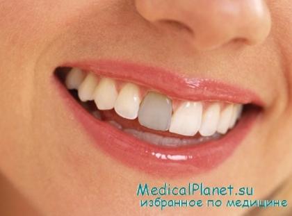 Как восстановить сломанный зуб? Лечение травмы зубов