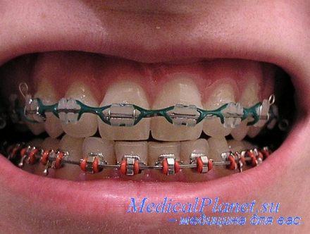 Установленные брекеты на зубах