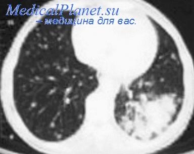 КТ при туберкулезе