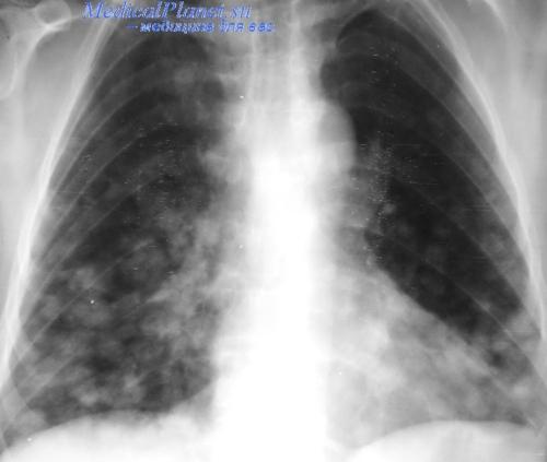 Рентгенограмма при туберкулезе легких