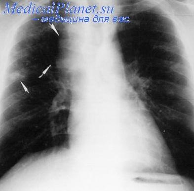 снимок легких при туберкулезе фото