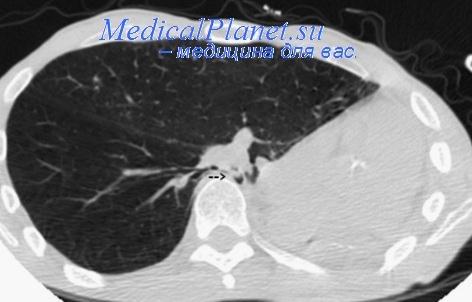 Пневмонэктомия с торакопластикой