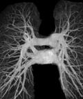 артерии легких