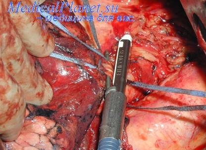 Уменьшение числа ветвей наблюдалось в тех случаях, когда две сегментарные артерии отходили общим стволом...