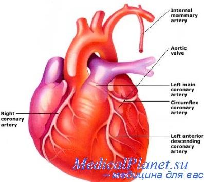 Аневризма брюшной аорты симптомы и причины. Кто в группе риска?