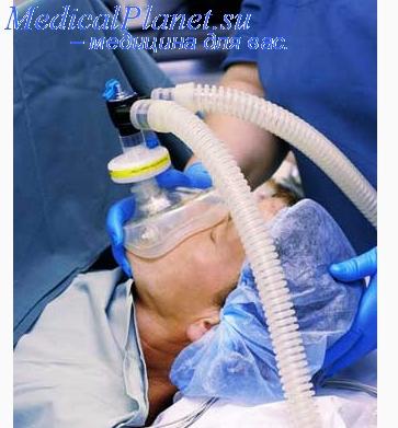 Обезболивание закисью азота