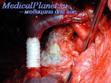 Клиническая больница кардиология