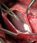 операции торакальные