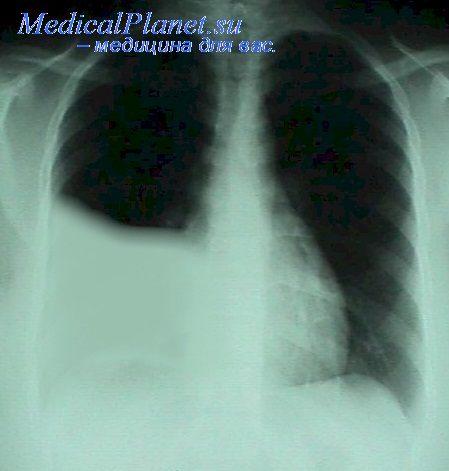 Рентгенограмма при гемотораксе справа