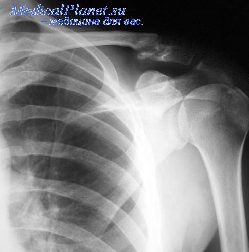 Рентгенограмма перелома ключицы